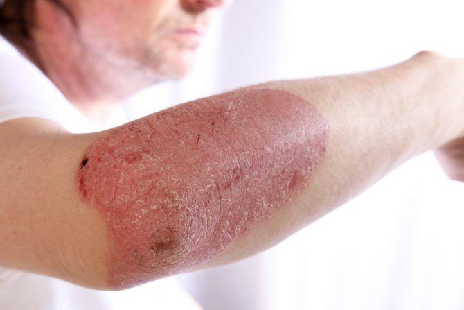 Psoriáza je kožné ochorenie, ktoré sa často míli s ekzémom. Zistite aké sú jej príznaky, aby ste ju vedeli identifikovať.