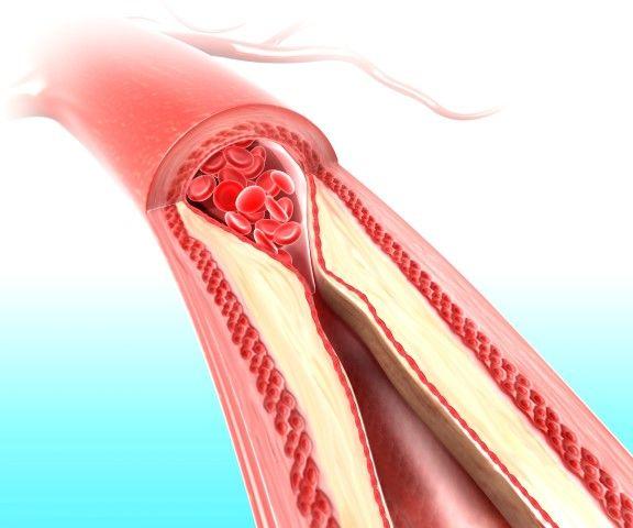 """Colesterol bom? Ruim? Se é colesterol, não seria sempre ruim? Pois é, muita gente ainda tem dúvida sobre esse tema. Para ajudar a esclarecer os """"mistérios"""" que rondam o assunto, vamos falar hoje sobre colesterol – e entender de vez essa intrigante relação.  Para começar, é importante saber o seguinte: colesterol é um tipo de gordura encontrado no nosso corpo e que é fundamental ao funcionamento adequado dele.  Existem 2 tipos de colesterol basicamente. O bom, chamado de HDL, e o ruim…"""