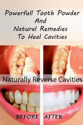 Natural remedy to heal cavities