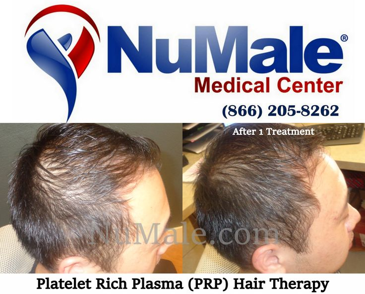 Platelet Rich Plasma (PRP) Hair Restoration Therapy. . Use Your Body's Own Plasma Fast Results Affordable and Cost Effective No Scarring  No Medications . Schedule Your Consultation  (866) 205-8262 . http://www.numalemedical.com/services/hair-restoration.html?utm_source=Facebook%20Status%20Update . . . . #HairLoss #HairGrowth #Alopecia #ThinningHair #Balding #BaldSpots #HairTransplant #HairRestoration #HairReplacement #ThinHair #Hair #ThickHair #HairDoctor #CurlyHair