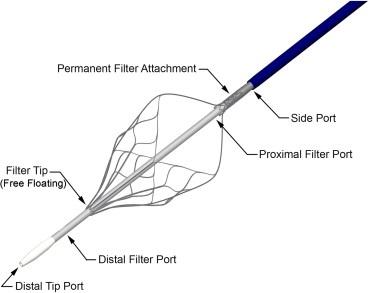Best 25+ Central venous catheter ideas on Pinterest