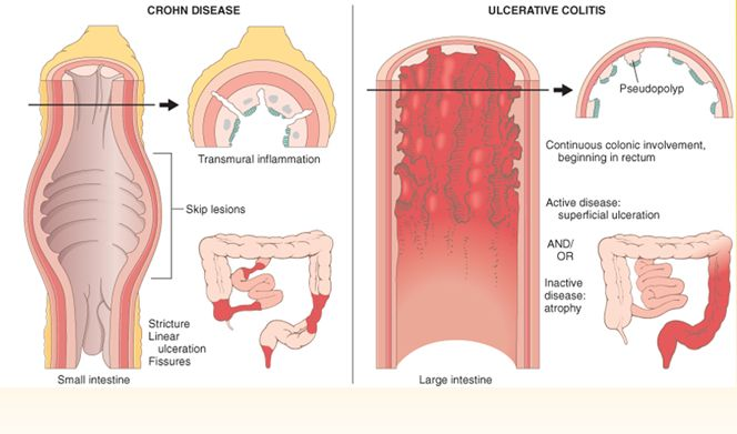 an analysis of the crohns disease also called morbus crohn Clinical effectiveness and cost-effectiveness of elemental nutrition for the maintenance of remission in crohn's disease: a systematic review and meta-analysis a systematic review and economic evaluation of the use of tumour necrosis factor-alpha (tnf-α) inhibitors, adalimumab and infliximab, for.