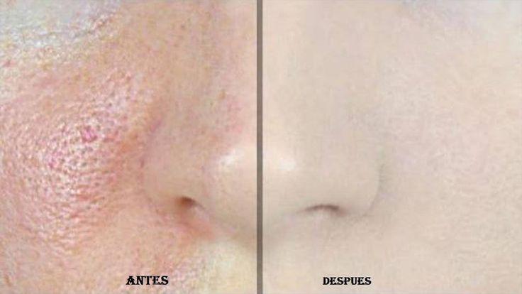 Este remedio elimina los poros de la cara en segundos… Quedarás sorprendida