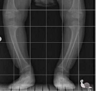 Caracol Miricol: Bebés y piernas torcidas