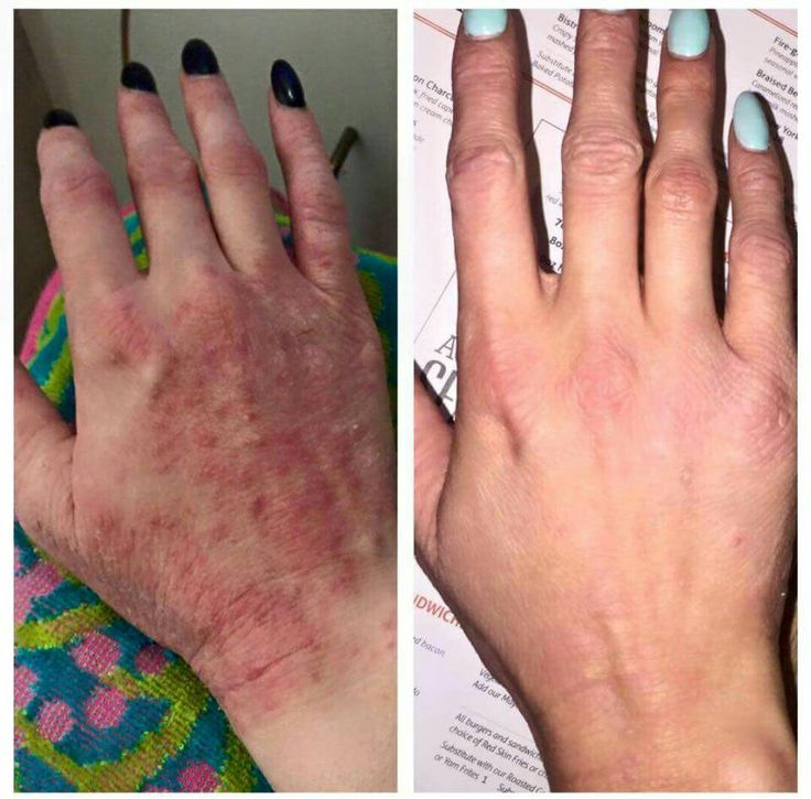 "Please. #ezcema suffers...Get some information about Skincerity.  It's like ""roll-on"" skin and it works.  It's cosmetic, no steroids.  This pic is Mel's hand.  Please just google it... It works"