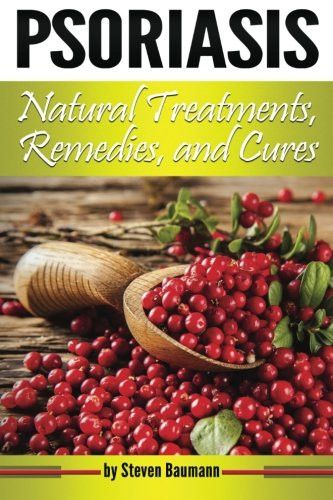 Psoriasis Natural Treatments, Remedies, and Cures: Your Guide to Psoriasis Home Treatment Options (