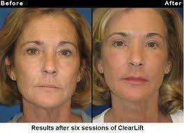looking for clear lift laser treatment ? Belgravia Cosmetic Clinic is providing best results for clear lift laser treatment . Contact us today for clear lift laser treatment in london.