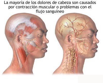 Cuadro comparativo: Semiología de las CEFALEAS - Medicina mnemotecnias