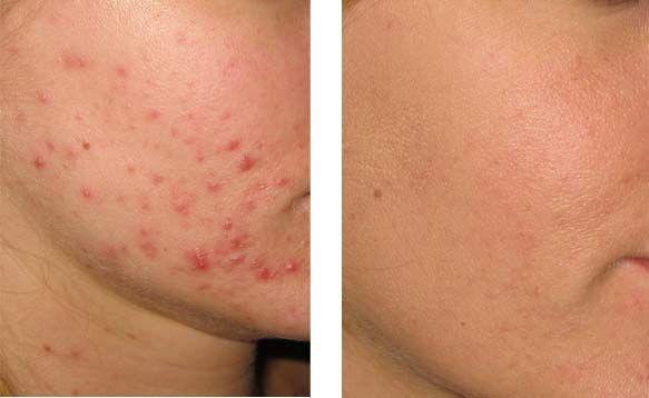 Acnetherapie Deze therapie richt zich tegen een van de meest voorkomende huidziekten: acne, beter bekend als (jeugd)puistjes of mee-eters. Zo'n 85% van de jongeren tussen de 11 en 25 jaar heeft in enige mate last van deze huidaandoening, maar ook op latere leeftijd komt acne nog bij menigeen voor. Acne is een huidaandoening met puistvormige ontstekingen en comedonen (mee-eters) van zich verstopte en/of ontstoken talgklieren in de huid.