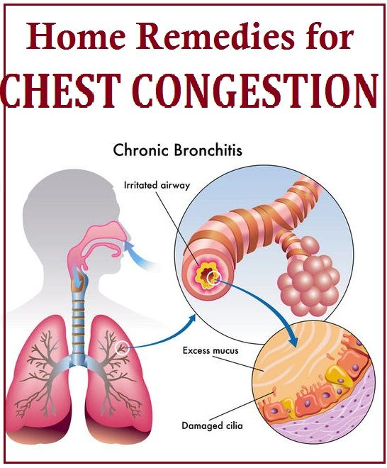 how to get rid of congestion in your chest naturally