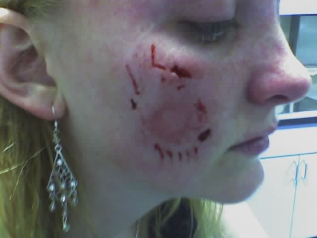 Dog Bites Google Search Zombie Wound Makeup Dogs