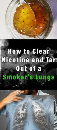 If you're a smoker, you already know that your lungs are loaded with nicotine and tar, substances harmful to your health. The same is true for those who had quit smoking months ago. This article is…