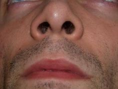 Cold Sores in Nose: Causes, Symptoms, Treatment and Best Home Remedies