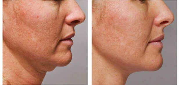 Speciální zpráva pro 2015: Jak vymazat 10 let ze svého obličeje bez nebezpečných zákroků