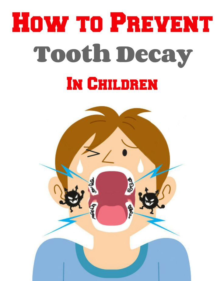 Ultimate guide to help you prevent #ToothDecay in #Children