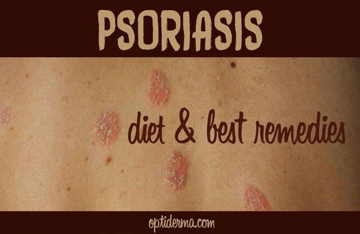 I'm a Certified Holistic Nutritionist and I have psoriasis. Can psoriasis be controlled through diet? The answer is YES. Here's what you need to know:
