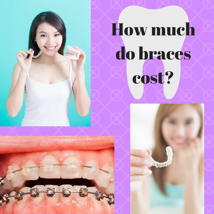 How much do braces cost?  Read more about financials at our office:   http://www.drmashouf.com/office-info/financial