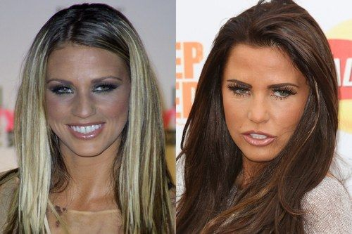 Katie Price nose job plastic surgery before and after photos....