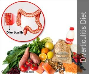 Diverticulitis is an easily preventable disorder. You just need to pay more attention to your diet. Here are some diverticulitis diet tips to prevent and manage the condition.