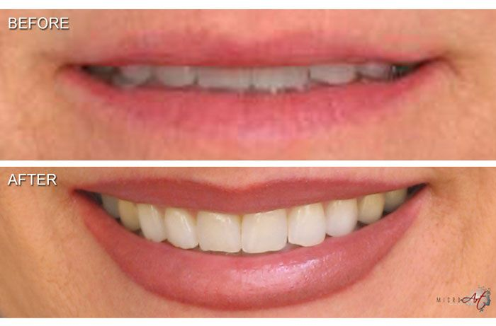 27 best lip tattoo permanent makeup images on pinterest for Tattoo shops in winston salem nc