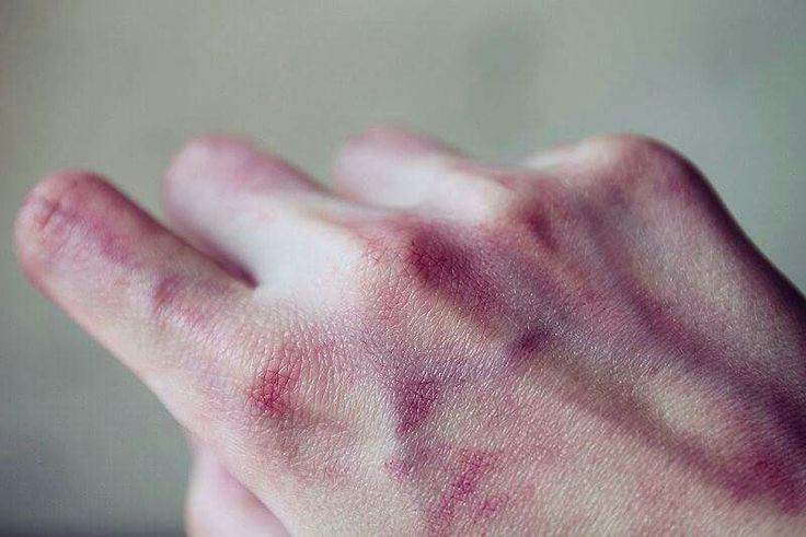 He stared at his bruised hands, no remorse for what he had done. But when he…