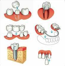 Resultado de imagen para protesis dental dibujo pinterest