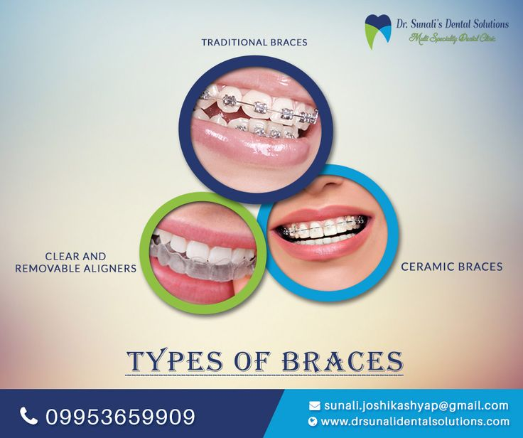 Checkout different types of braces that you can use for a better aesthetics of your smile. Visit us for quality treatment & precise results! Visit - www.drsunalidentalsolutions.com #Dentist #Dental