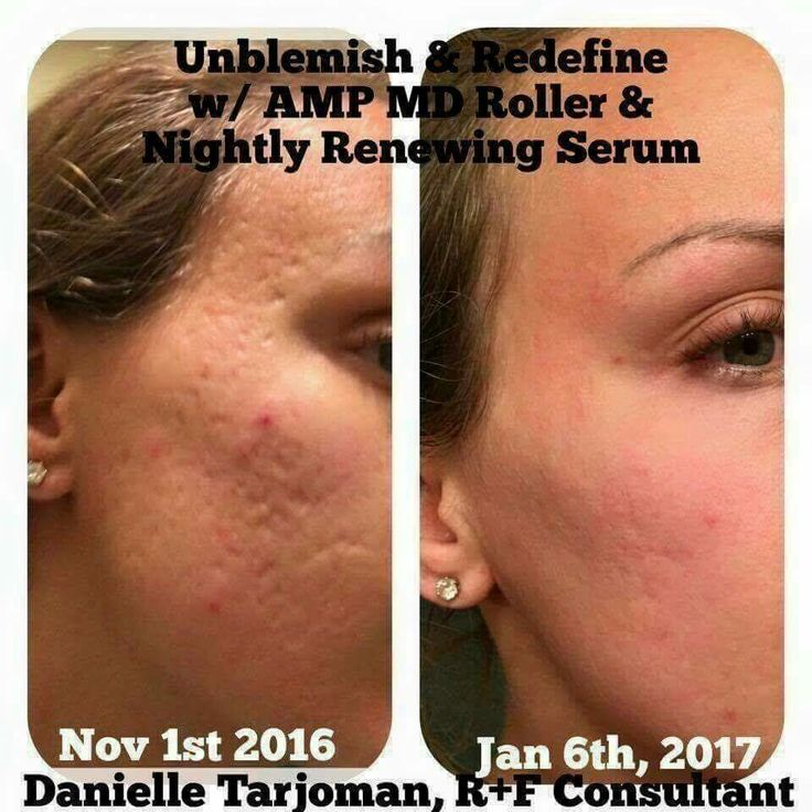 Bad & Idee Fuller How Do You Treat Post Acne Scars Unblemish And Redefine