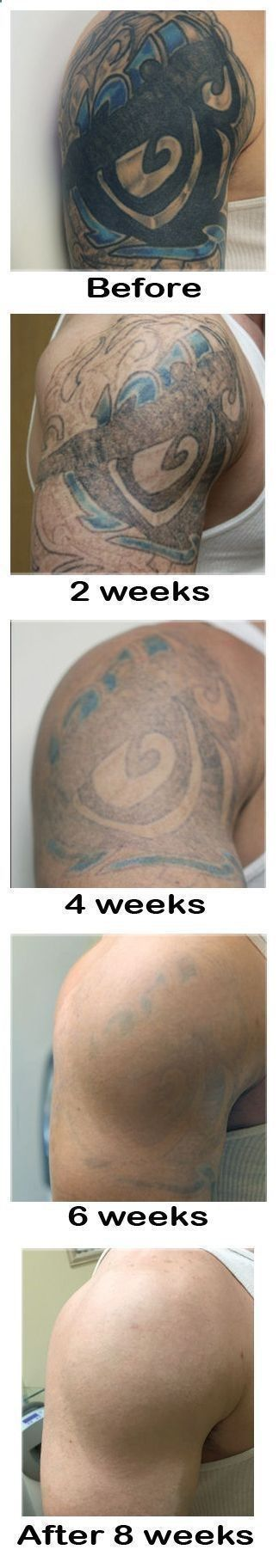 Tattoo after 8 weeks. Lemon   this ingredient can take it off. Learn more about laserless tattoo removal here: laserlesstattoore... #tattoo #tattoos #cover_up_tattoos #tattoo_cover_up #tattoo_removal #tattoos_for_women #temporary_tattoos #laser_tattoo_removal #tattoo_removal_cream #tattoo_removal_before_after #home_tattoo_removal #remove_tattoo_at_home #removal_cream #permanent_makeup #cosmetic_tattooing #permanent_makeup_remove #cosmetic_tattooing_remove #removetattoos