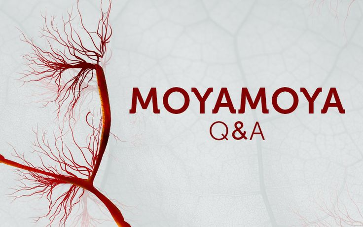 4 questions parents have about moyamoya disease-Thriving blog-Boston Childrens