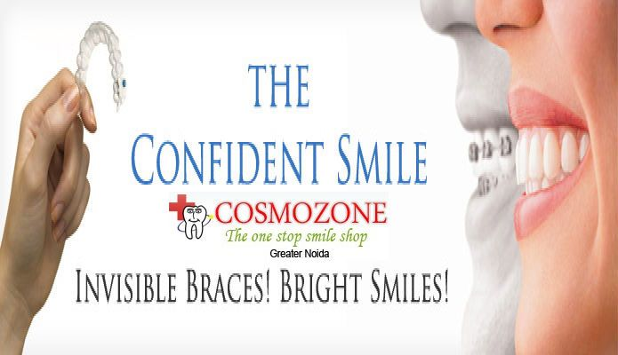 """ A Brighter New Smile""....#braces  Restore your Teeth to Natural Shape & We create a beautiful Smile.....  Visit:goo.gl/gVX6b7"