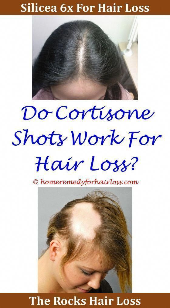 Is This Treatment The Cure For Hair Loss Ny Timespropecia 5mg For