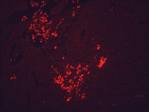 Immunofluorescent detection of HSP90 using Anti-HSP90 monoclonal antibody SMC-107B in cancerous human colon tissue.