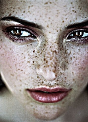 Beautiful freckles ✔