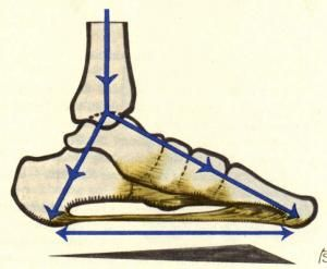 how to put an arch back in your foot