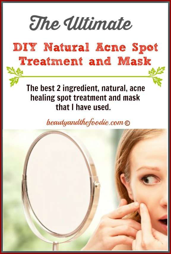 The Ultimate DIY Natural Acne Spot Treatment and Mask. I have been using this for almost 20 years and it is very effective!