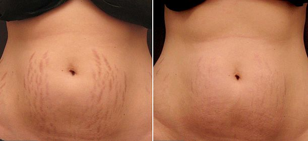 Stretch marks, or striae, are an unsightly skin condition that affects men and women who have undergone rapid growth, weight gain, or weight loss....