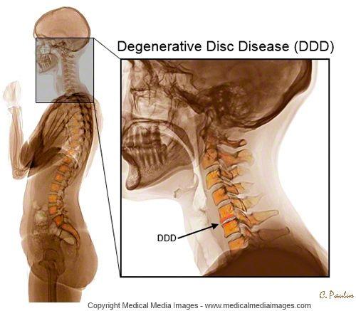Chronic and Degenerative Diseases