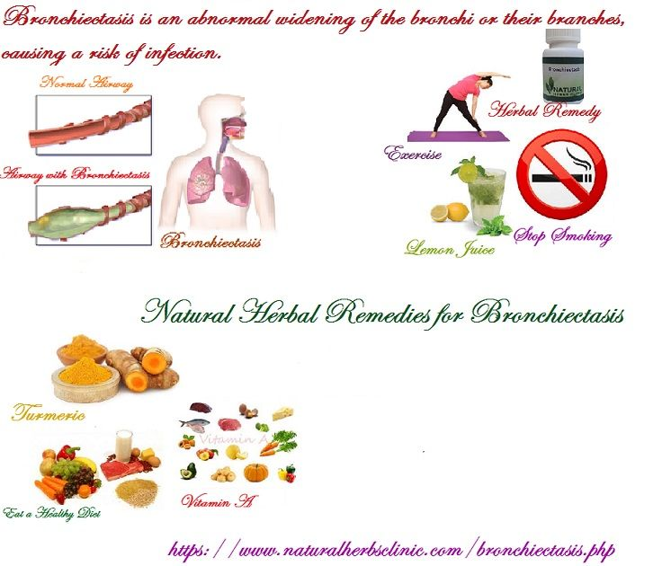 Natural Herbal Remedies For Bronchiectasis Herbal Remedies