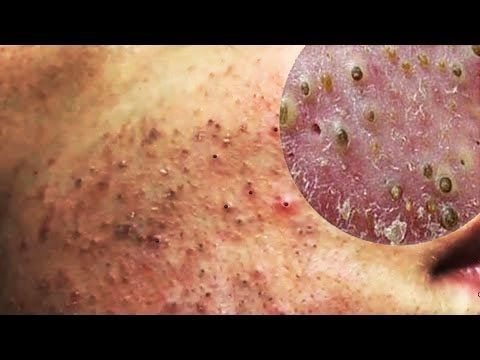 Cystic Acne, Pimples And Blackheads Extraction Acne Treatment On Face!!! (Part04) -  CLICK HERE for the Acne No More program #acne #acnetreatment #acnetips #acnecare Thanks For Watching : Cystic Acne, Pimples And Blackheads Extraction Acne Treatment On Face!!! (Part04) Please Subscribe Chanel : Pimple Popping & Blackheads Removal :  Welcome to my channel! Hopefully this... - #Acne