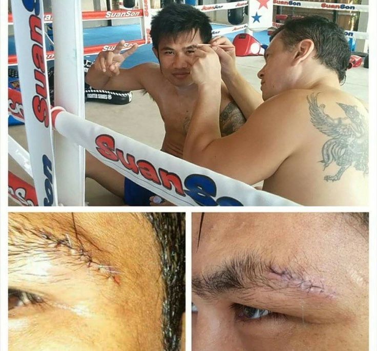 Muay Thai fighter stiches, good as new @suansonbeachmuaythai #rayong #suansonmuaythai #fightlife #banphe #kosamed #thaiboxing #stiches