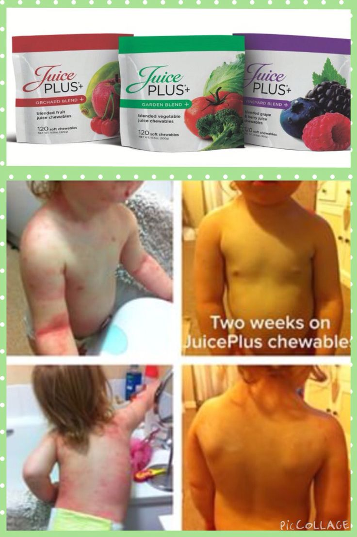 Our juice plus chewables are amazing!! They help clear up childrens eczema!
