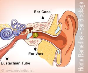 Home Remedies for Ear Blockage | Simple Tips to Curb Ear Blockages