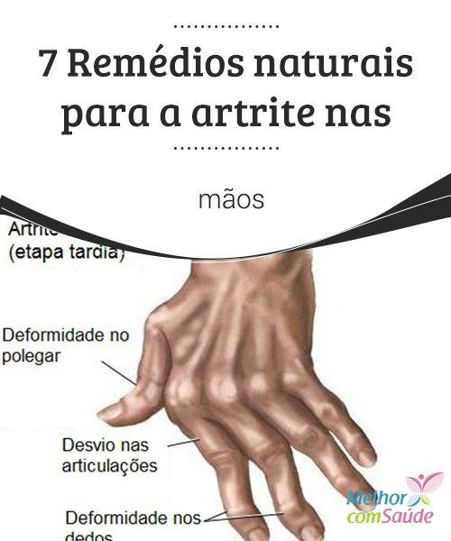 7 #Remédios naturais para a #artrite nas mãos  Os #sintomas da artrite nas mãos podem ser tratados naturalmente, para melhorar a qualidade de vida e impedir que a dor afete as nossas #atividades diárias.