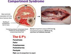 Compartment Syndrome.  MC- tibia.  Tx- Fasciotomy.  Radius and ulna are 2nd MC type of fracture involved in ACS.