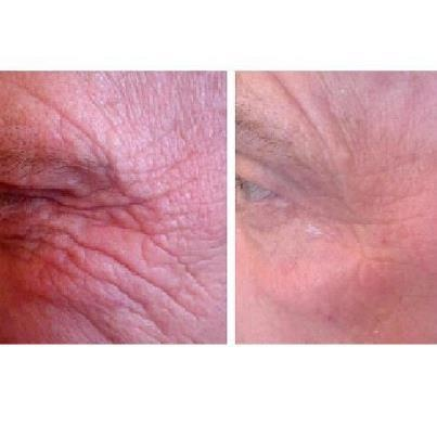 Seacret Recover see the results in just 15 minutes
