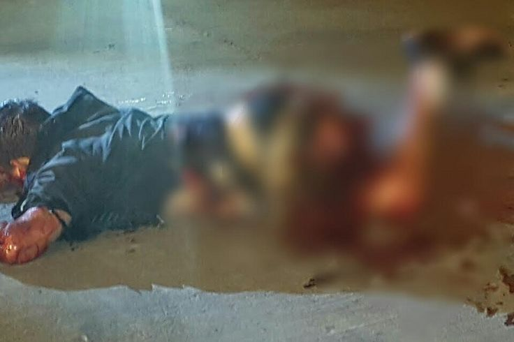 """La noche del viernes un hombre que iba a bordo de una bicicleta resultó gravemente lesionado al explotar un artefacto de fabricación casera conocidas como """"papas"""" y amputarle una pierna ..."""
