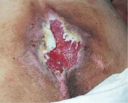 Stage III pressure ulcer. characterized by full-thickness tissue loss, the tissue damage involves the dermis and part of the subcutaneous layer with some adipose tissue visible. Citation: Niezgoda, J. A., & Mendez-Eastman, S. (2006). The effective management of pressure ulcers. Advances in Skin & Wound Care: The Journal for Prevention and Healing, 19(1), 3-15. Retrieved from http://www.nursingcenter.com/lnc/JournalArticle?Article_ID=636557&Journal_ID=54015&Issue_ID=636556