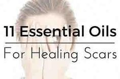 11 of the Best Essential oils to use for Scar Tissue healing and reduction Below you will find 11 of themost highly recommended essential oils for scar healing.  Once you've skimmed those be sure to read on to the recipes that follow.  If you want to effectively treat scarswith essenti