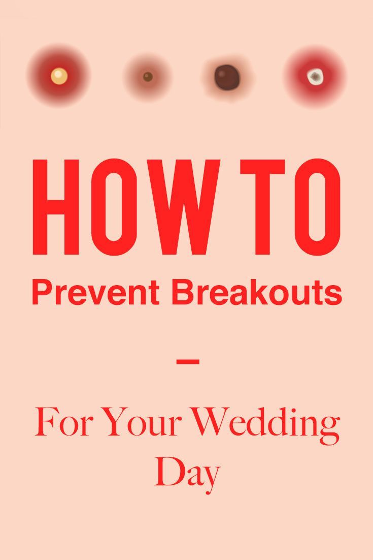 How To NOT Break Out Right Before Your Wedding Day   Beauty